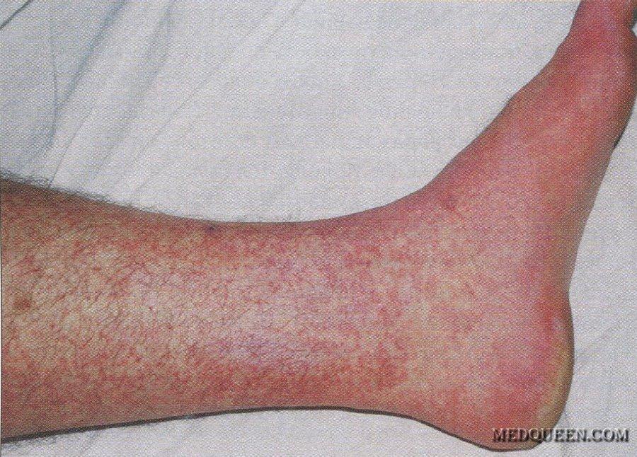 фото геморрагические лихорадки