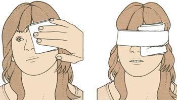 Первая помощь при травме глаза или века