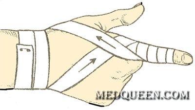 Спиральная повязка на палец
