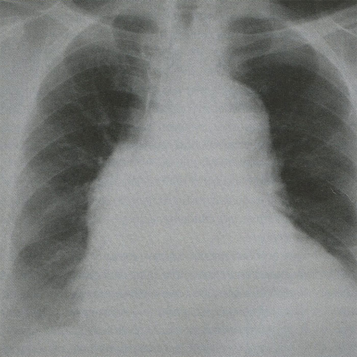 аорты, части, аневризмы, сердца, грудной, расслоения, больных, легких, брюшной, области, протяжении, расслоение, разрыва, органов, полости, разрыв, больной, данным
