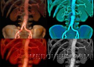 Аневризма восходящего отдела аорты по мкб 10 -