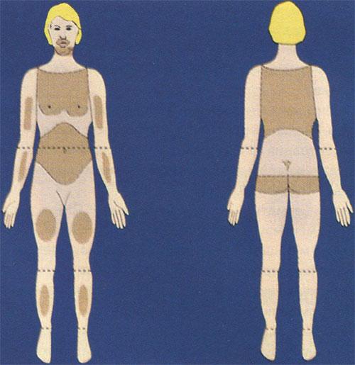 Гирсутизм: андрогензависимые зоны (зоны оволосения) у женщин