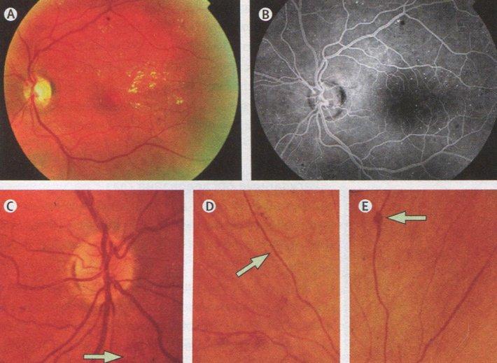Непролиферативная диабетическая ретинопатия