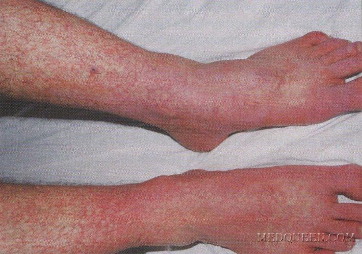 Геморрагическая форма лихорадки денге