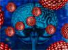 Неврологическая артериальная гипертензия