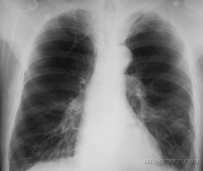 Рентгенограмма в прямой проекции