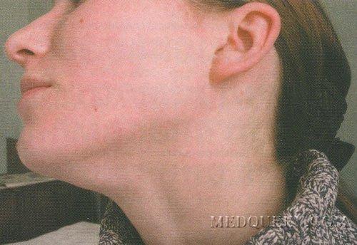 Краснуха, период разгара. Увеличенные подчелюстные и затылочные лимфатические узлы