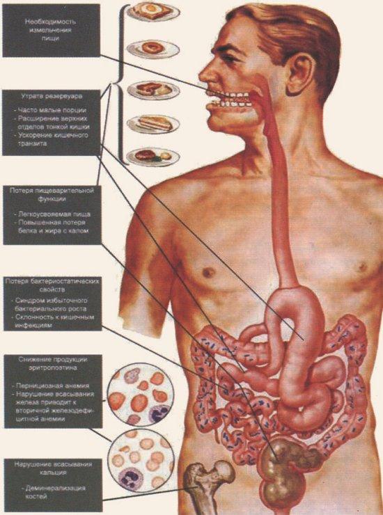 Нарушение пищеварения и симптомы мальассимиляции после гастроэктомии (по F.H. Netter, 2002)