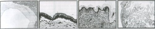 Гистологическое исследование муцинозных кист