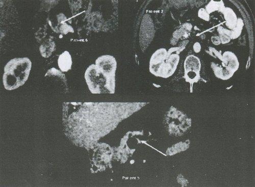 Компьютерные томограммы трех больных с МКД