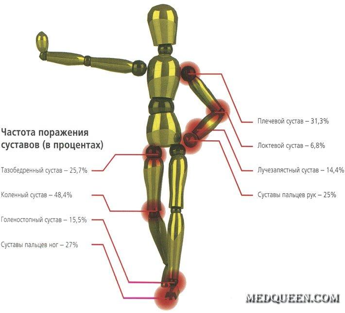 Частота поражения суставов