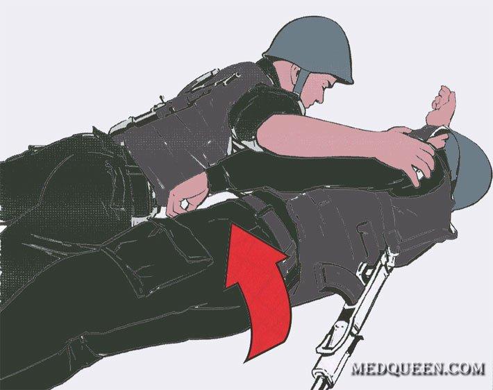 Перевод раненного в положение на бок (живот)