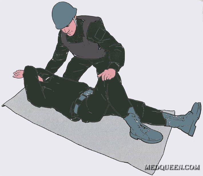 Переведение раненного в Стабильное положение
