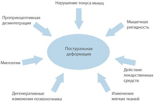 Возможные механизмы развития постуральной деформации при болезни Паркинсона