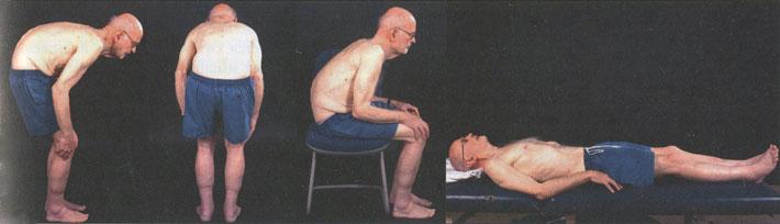 Камптокормия в положении стоя, сидя и лежа на спине