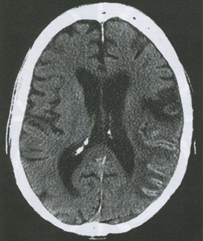 Типичная геморрагическая трансформация по ходу извилины после эмболического инфаркта