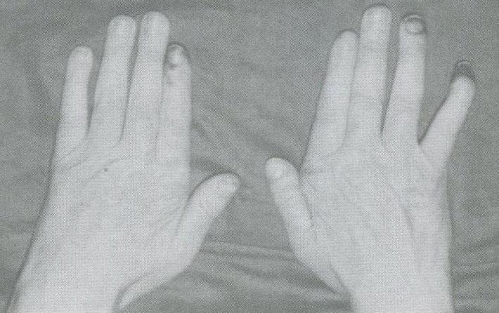 Гангрена дистальных фаланг пальцев у больного узелковым полиартериитом