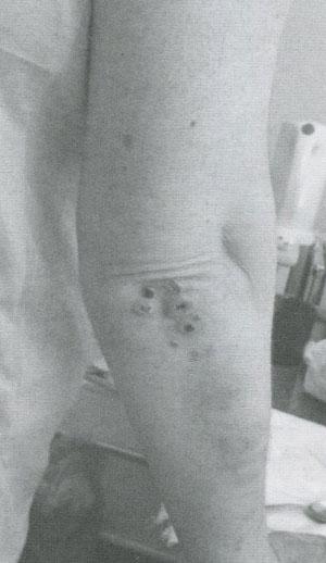 Папуло-некротическая сыпь на локте у больной ГПА