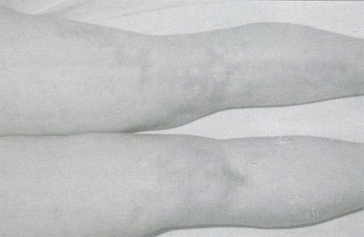 Древовидное ливедо у больного узелковым полиартериитом