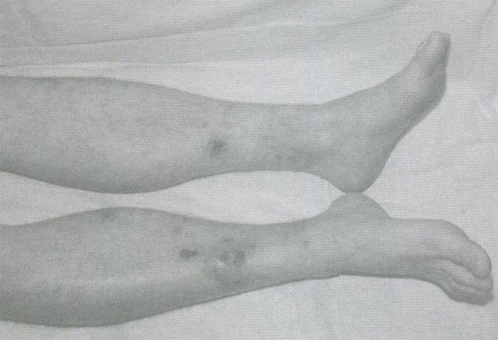 Язвы голеней у больного узелковым полиартериитом