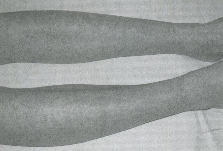 Пурпура разной давности на голенях при геморрагическом васкулите