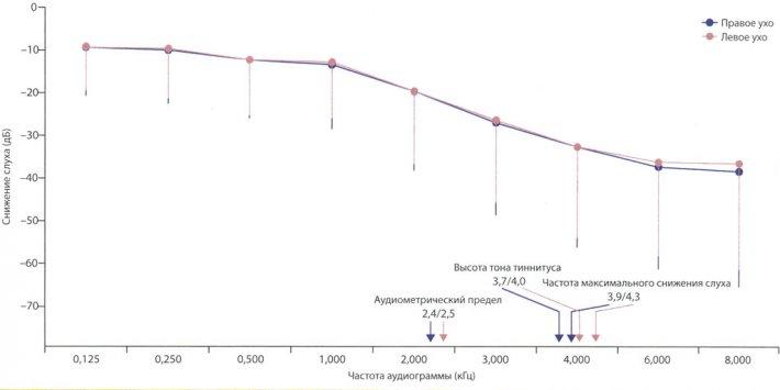 Снижение слуха у больных с тиннитусом и его связь с высотой тона тиннитуса