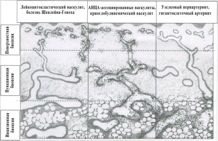 Гистологическая классификация (выбор оптимального метода биопсии) васкулитов с поражением кожи