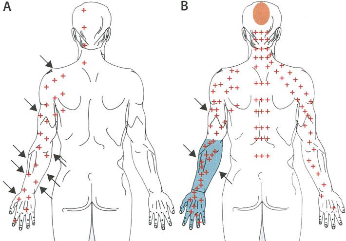 Клиническое разнообразие проявлений у больного с буйной формой бешенства