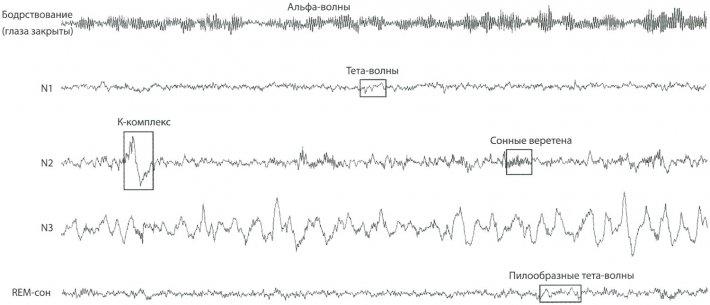 Электроэнцефалографические кривые, изображающие бодрствование в расслабленном состоянии и различные стадии сна у здоровых лиц