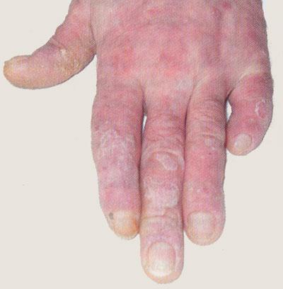 Псориатическая артропатия и дистрофия ногтей