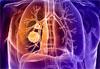 Лучевая диагностика рака легкого