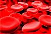 Анемия в онкологической практике