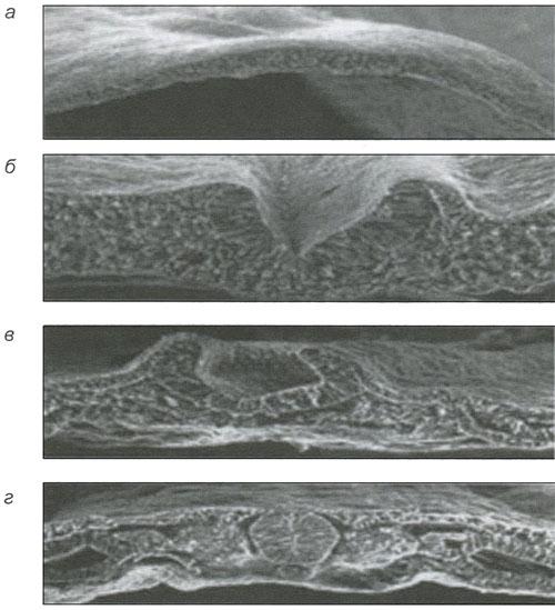 Микрофотограммы образования нервной трубки