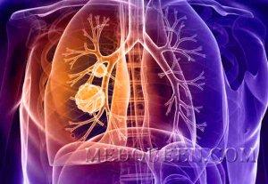 Комплексная лучевая диагностика рака легкого