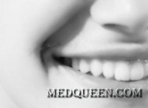 Как улучшить улыбку