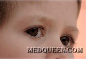 Лимфогранулематоз у детей