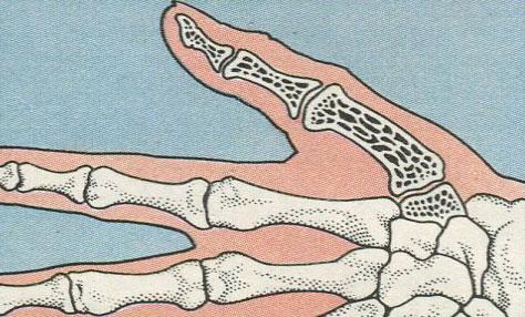 Седловидные суставы