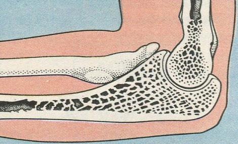 Блоковидные суставы