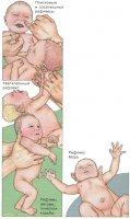 Рефлексы и двигательная активность новорожденного