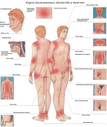 Карта болезненных зон у мужчин