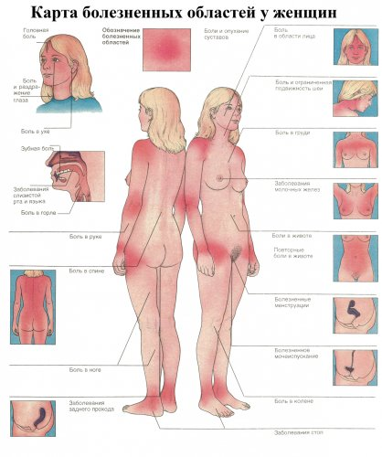 Карта болезненных зон у женщин