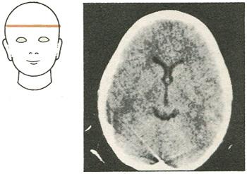 Компьютерная томография на уровне середины лба
