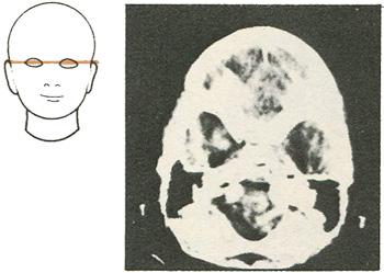 Компьютерная томография на уровне глаз