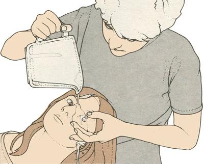 Попадание в глаза едких химических веществ