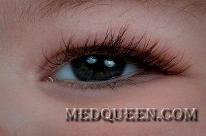Травма глаза у детей
