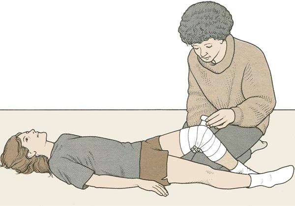 Наложение повязки при травме колена