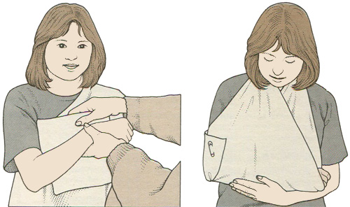 Фиксация руки при травме предплечья