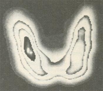 Радиоизотропное сканирование