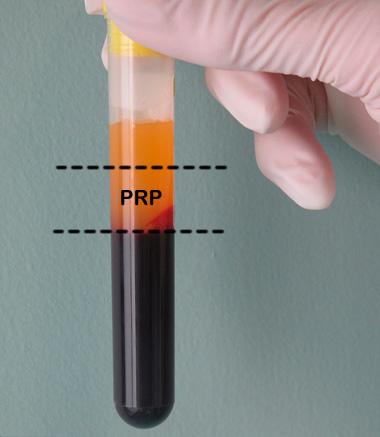 Platelet-Rich Plasma метод