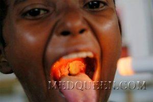 Дифтерия у детей. Лечение. Профилактика